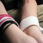 arm bracelets scars 3162243457_c6ffa930bb_z